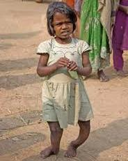 child with severe_skeletal_fluorosis
