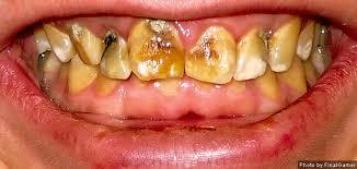 severe_dental_fluorosis